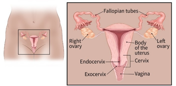 ovarian cancer how fast does it grow