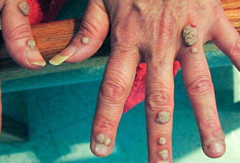 warts on hands from hpv