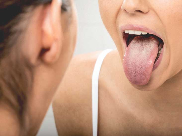 What causes papilloma on the tongue -