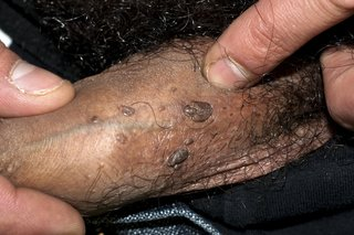 Hpv warts go away forever