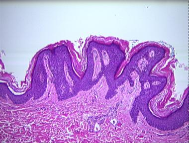 Histopathology of confluent and reticulated papillomatosis, Varicele reticular că