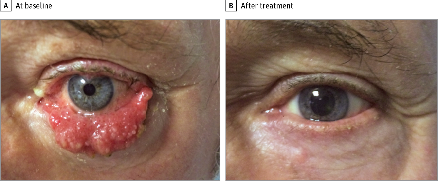 cell papilloma removal)