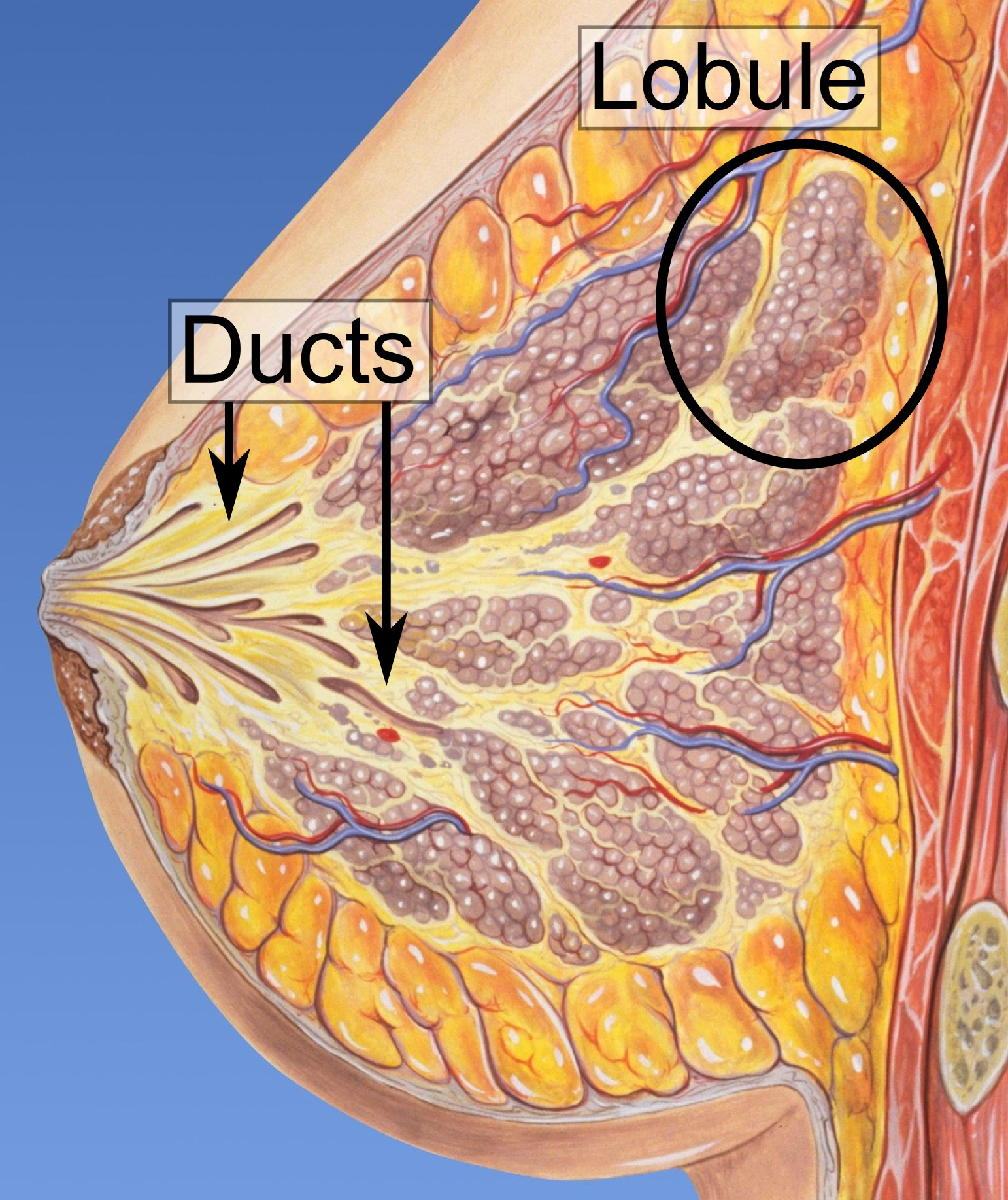 duct papilloma means