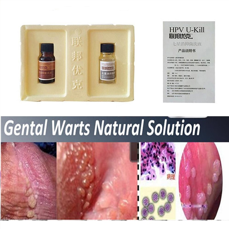 hpv warts how to remove