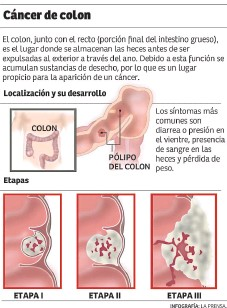 Cancer intestinal en ninos, Cancerul de colon