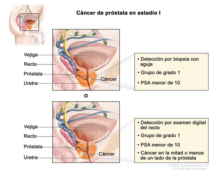 cancer de prostata leve