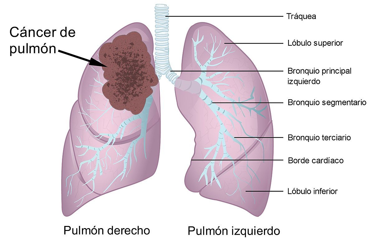 Cancer epitelial de pulmon