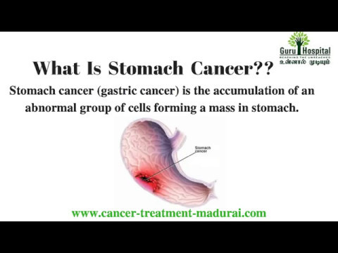 cancer gastric cure)