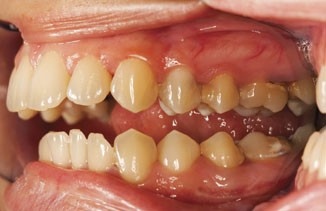 can hpv cause gum cancer)