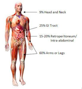 sarcoma cancer is)