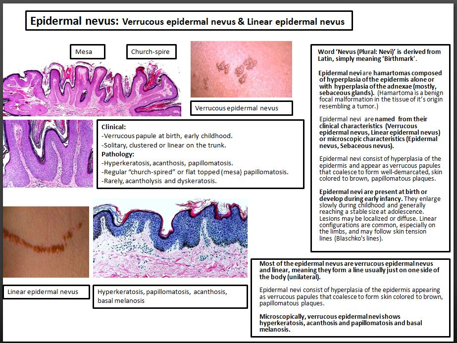 Hpv and skin disorders. , herpes - Translation into Romanian - examples English | Reverso Context