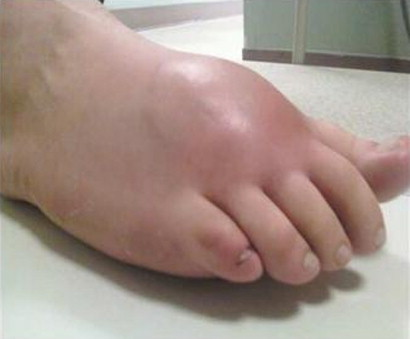 sarcoma cancer of the foot)