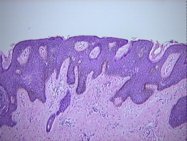 Histopathology of confluent and reticulated papillomatosis. Specificații