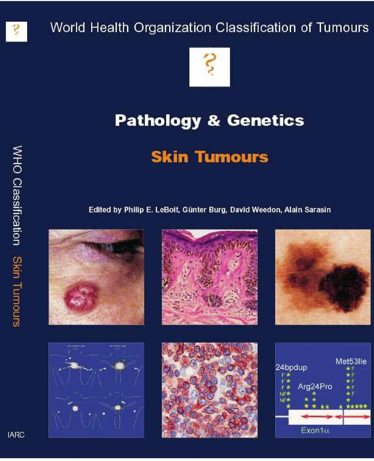 confluent and reticulated papillomatosis pathology outlines)