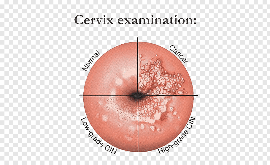 infection in papilloma