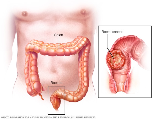 rectal cancer how fast does it grow)