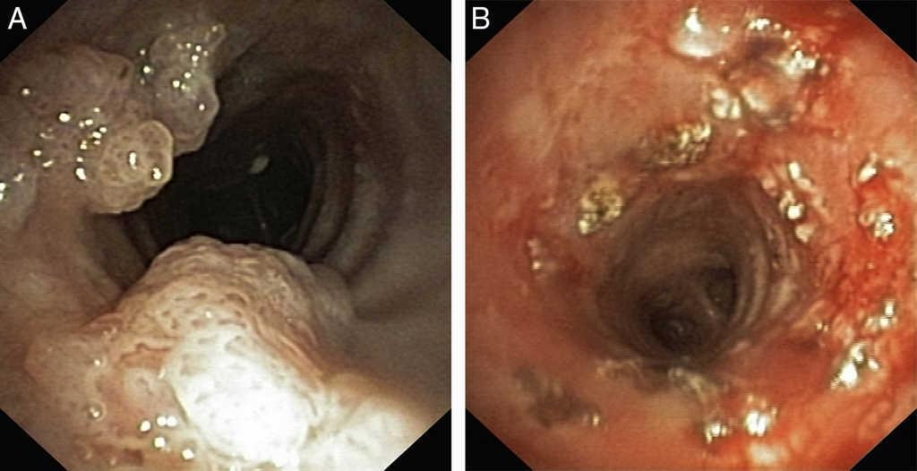 does hpv cause respiratory papillomatosis lesions