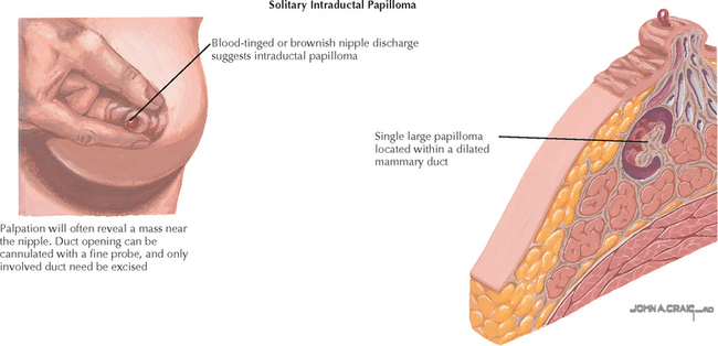 Intraductal papilloma ductal hyperplasia