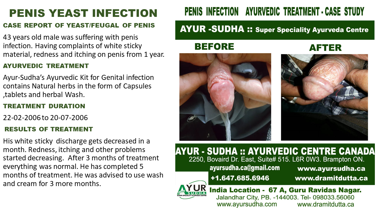hpv treatment in ayurveda