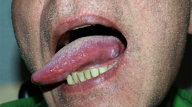 hpv tumor on tongue