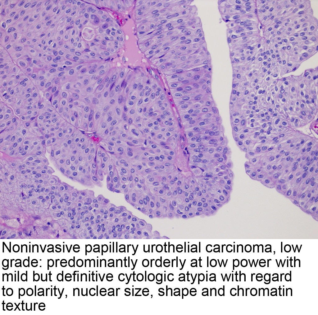 Papillary growth of urothelial tumor