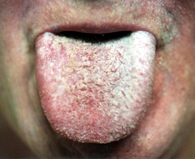 tongue papillae hypertrophy causes)