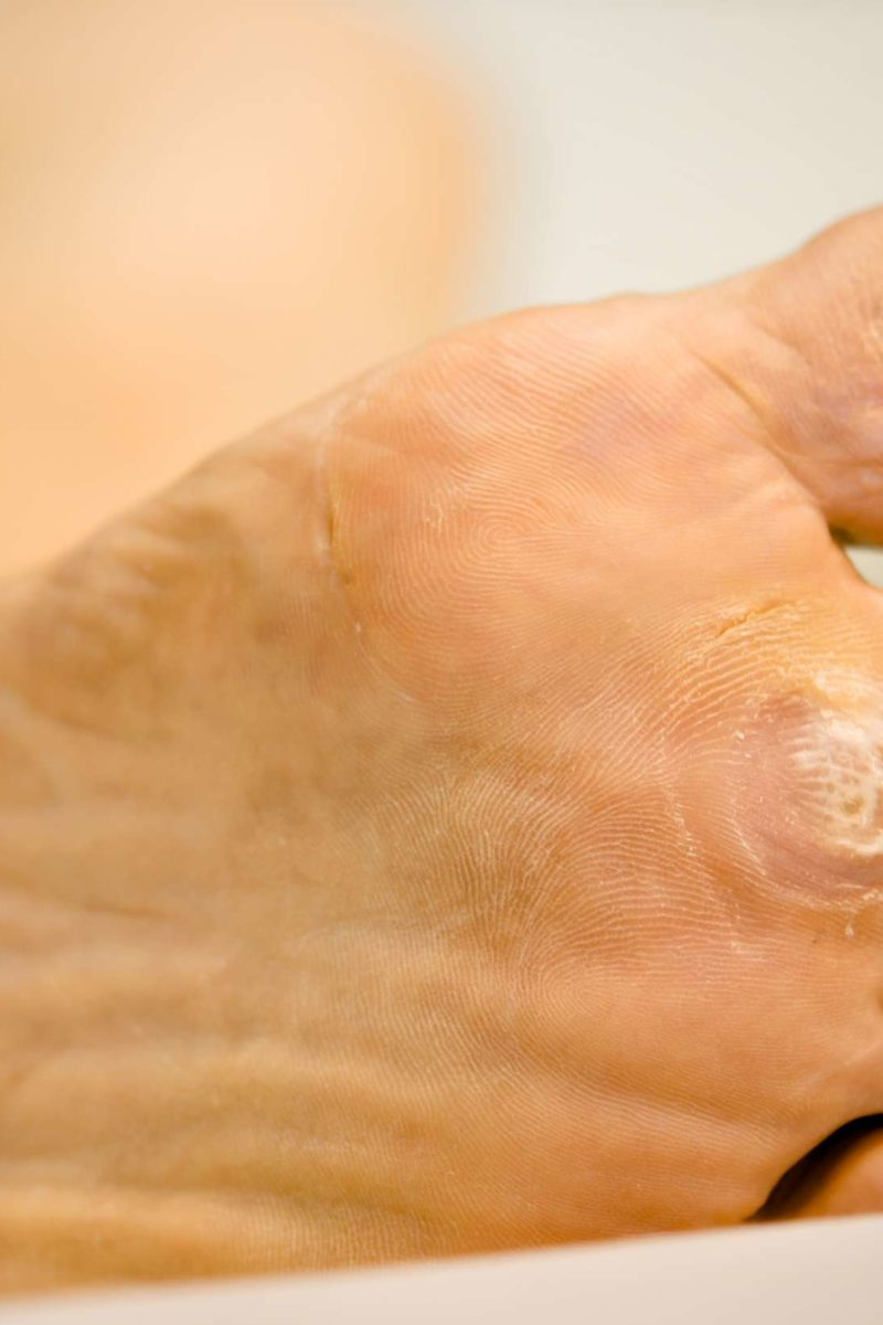papilloma on foot causes