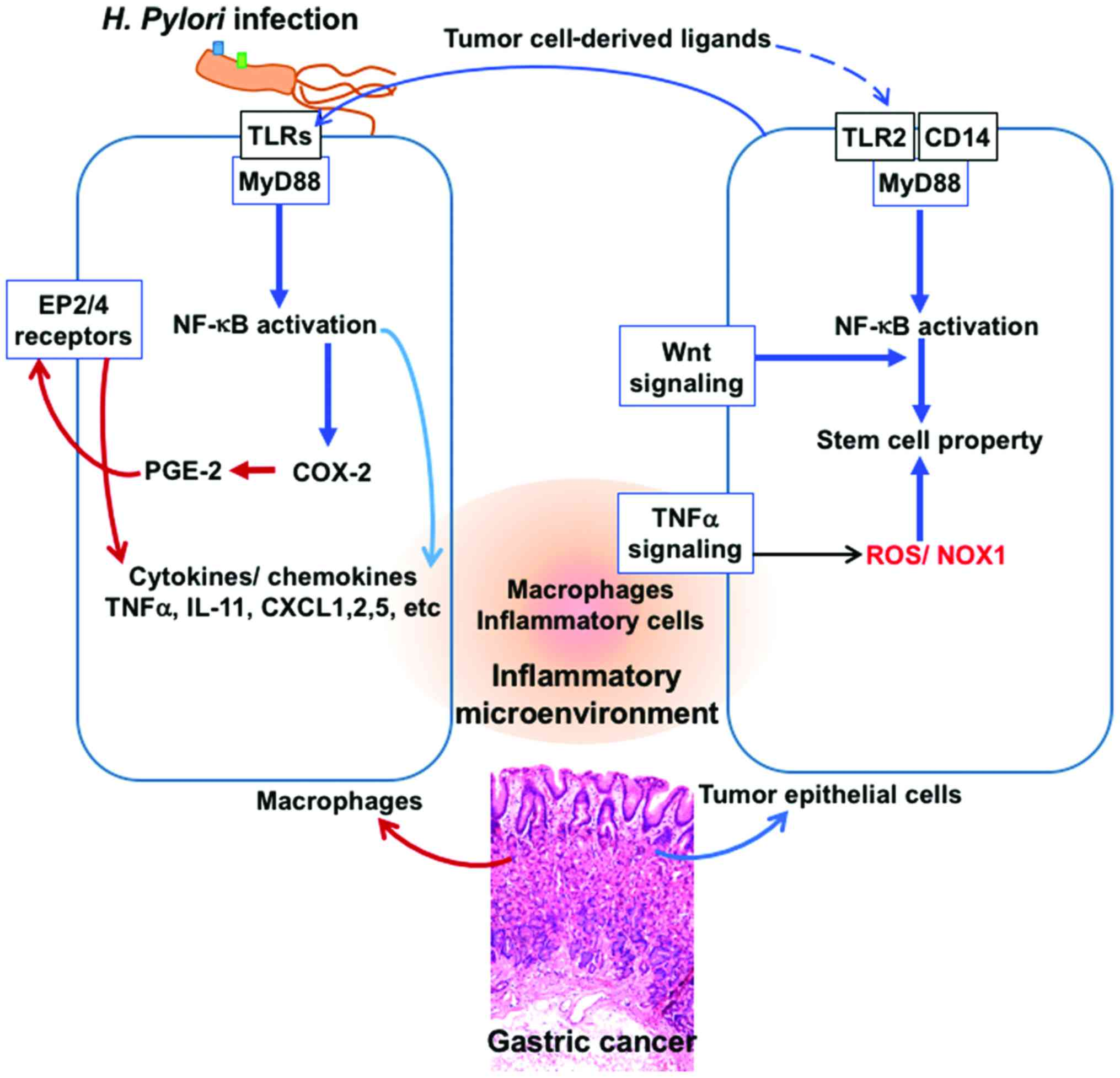 Helicobacter Pylori and Gastric Cancer