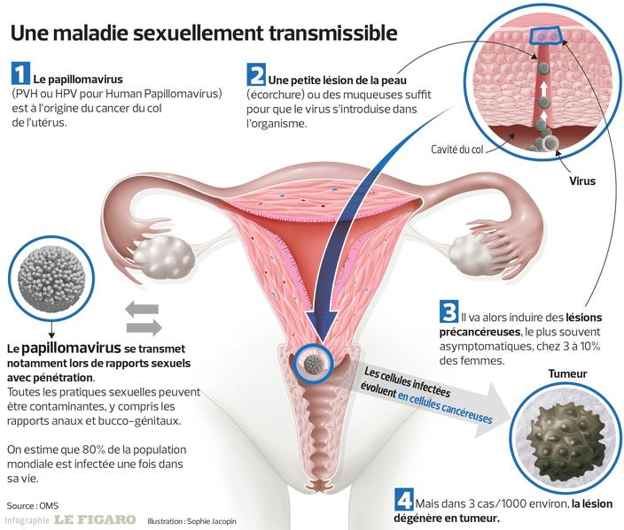 hpv cancer homme