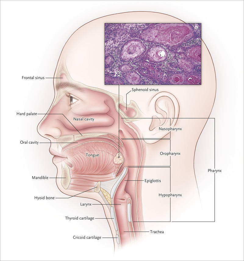 hpv induced head and neck cancer)