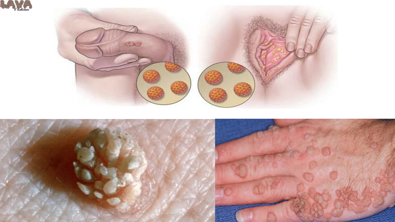 hpv infection herpes)
