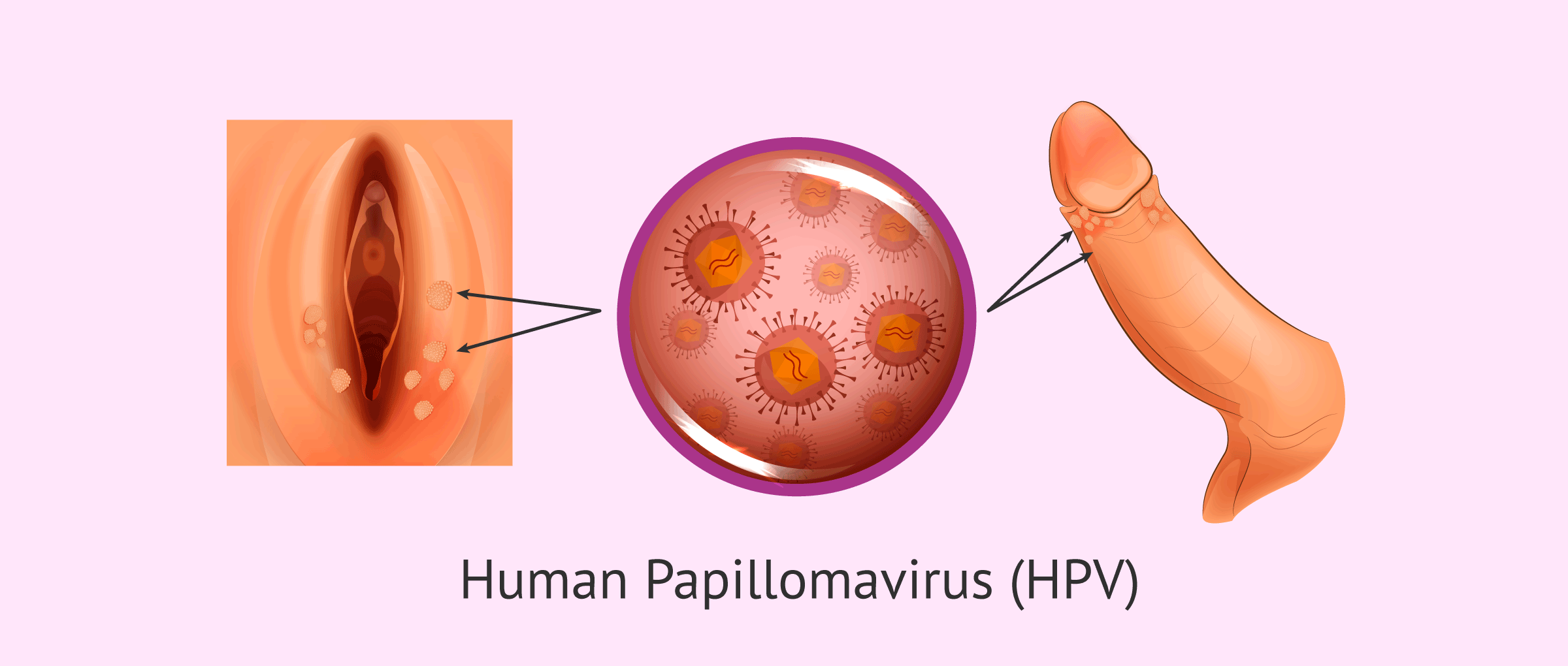 hpv that causes genital warts)