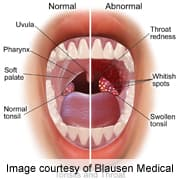 hpv throat blisters