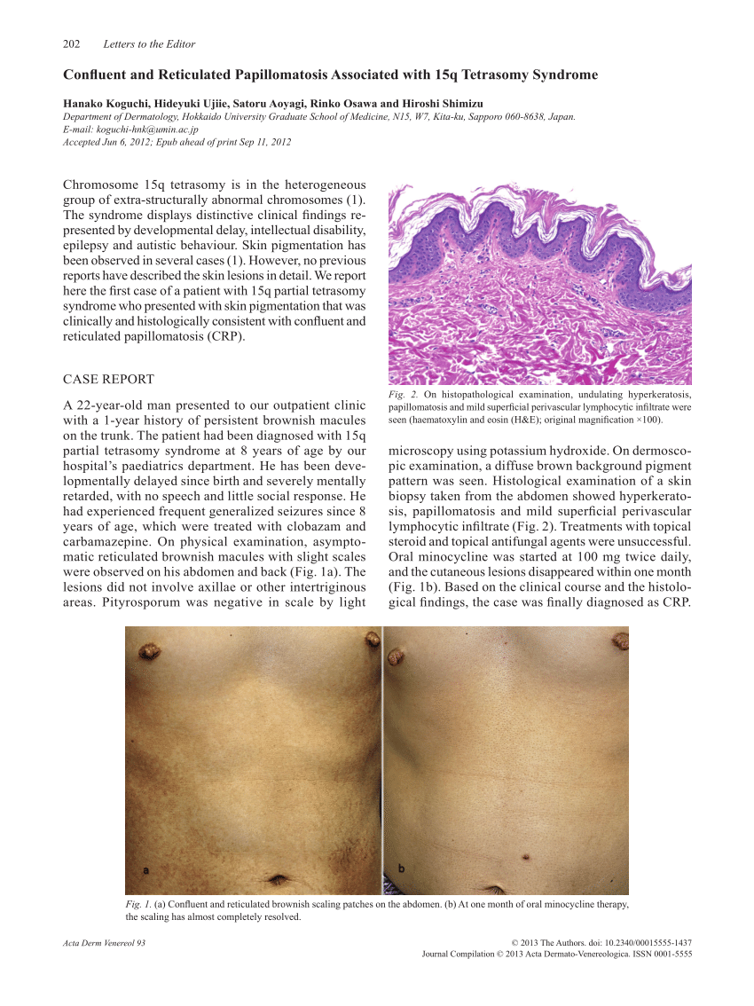 icd 10 for confluent and reticulated papillomatosis