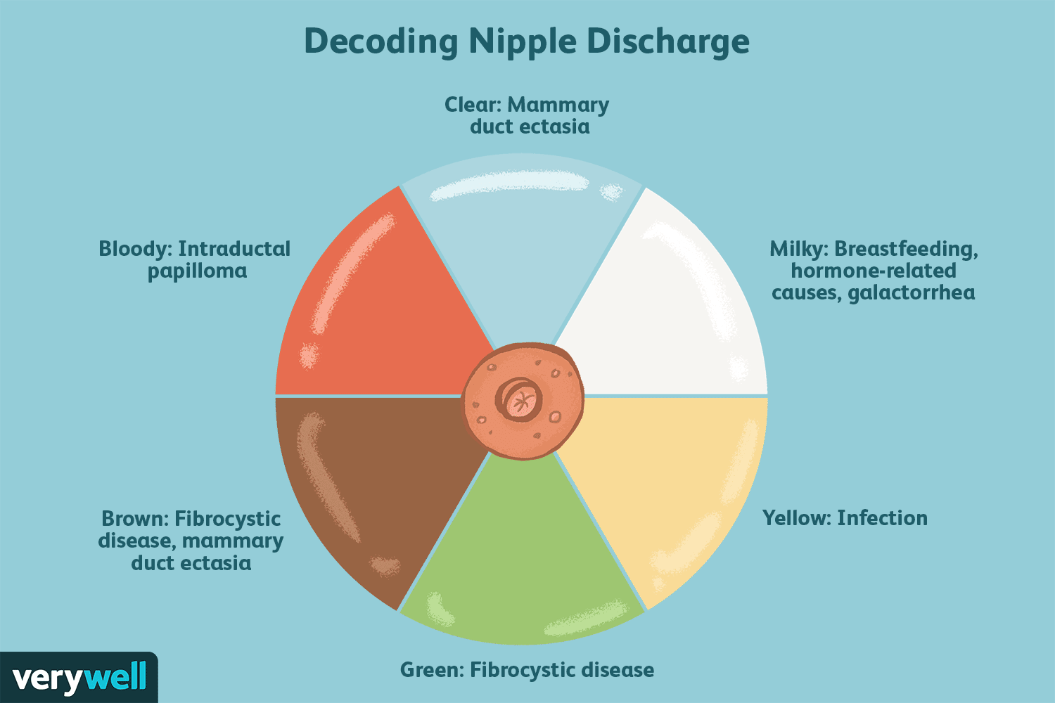 Intraductal papilloma bloody discharge