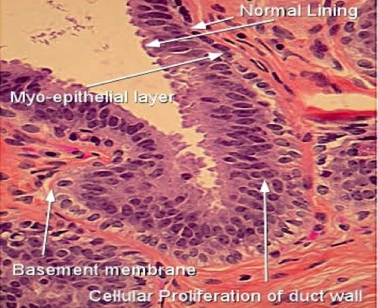 is intraductal papilloma caused by hpv