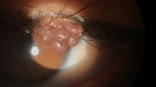Most viewed - Papiloma verrugas cancer