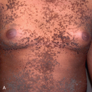 reticulated papillomatosis icd 10)
