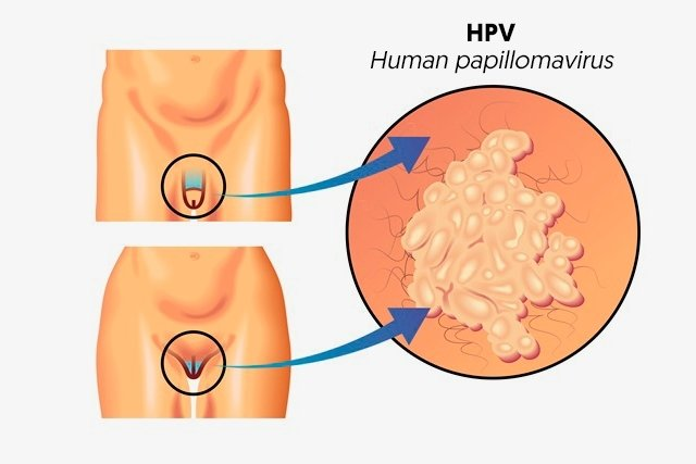 symptoms of human papilloma esophageal cancer hpv