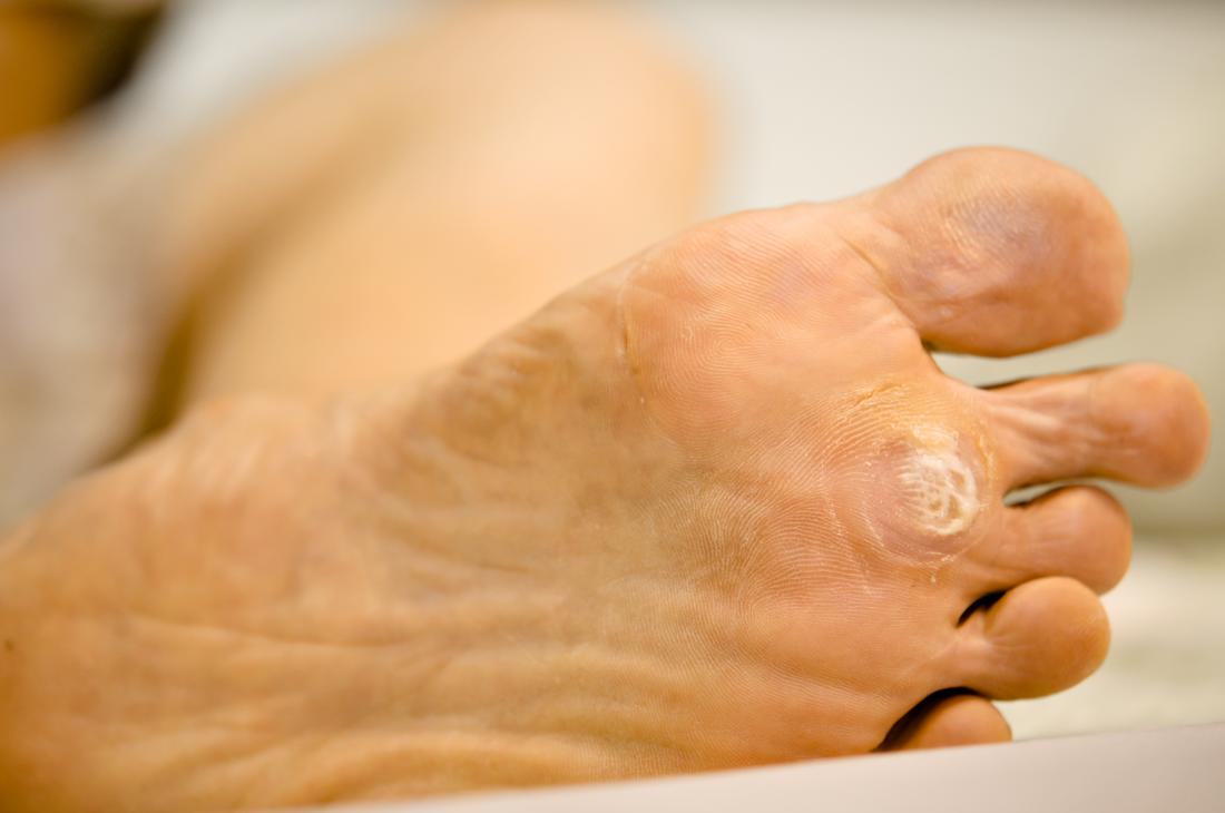 wart foot removal)